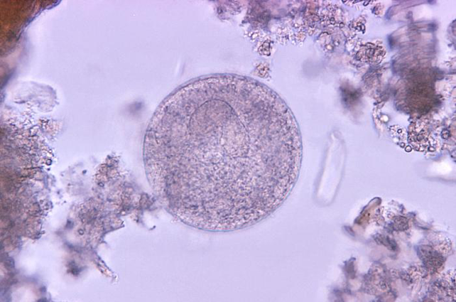 Microscopic image of Balantidium coli parasites