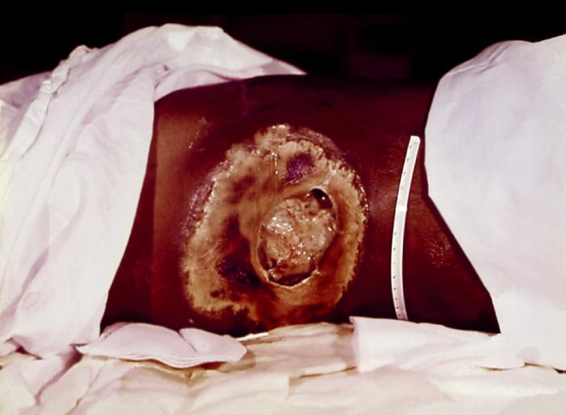 An Entamoeba histolytica infection that left the intestines and infected a patient's body tissues