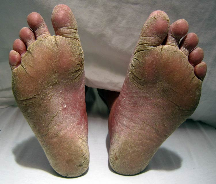 A patient with Athlete's foot