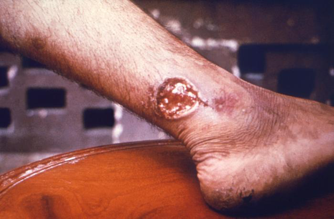 Cutaneous leishmaniasis on a patient's ankle