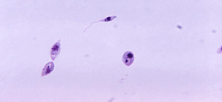 Microscopic image of Leishmania organisms at different life cycle stages