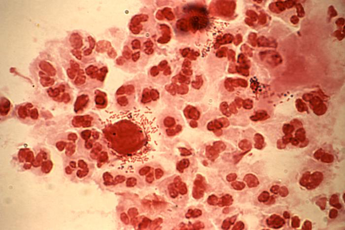 A gram-stained slide of urethral discharge showing both trichomonad organisms and rod-shaped bacteria